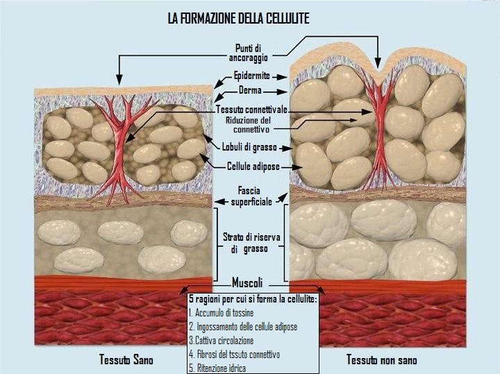 Cellulite e alimentazione